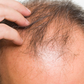 Bodybuilding & Coping with Baldness
